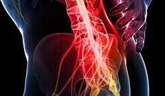 男人腰疼是什么原因以及治疗方法